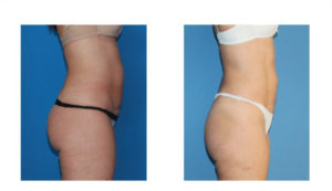 Liposuction ve High Definition Liposuction Uygulamaları